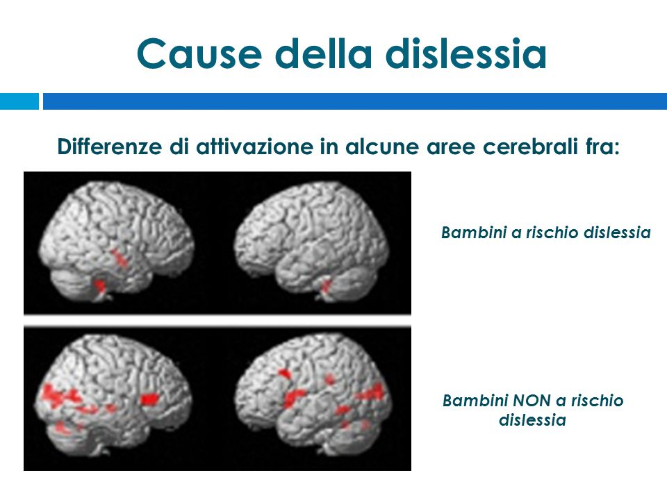 Bambini a rischio dislessia Bambini NON a rischio dislessia