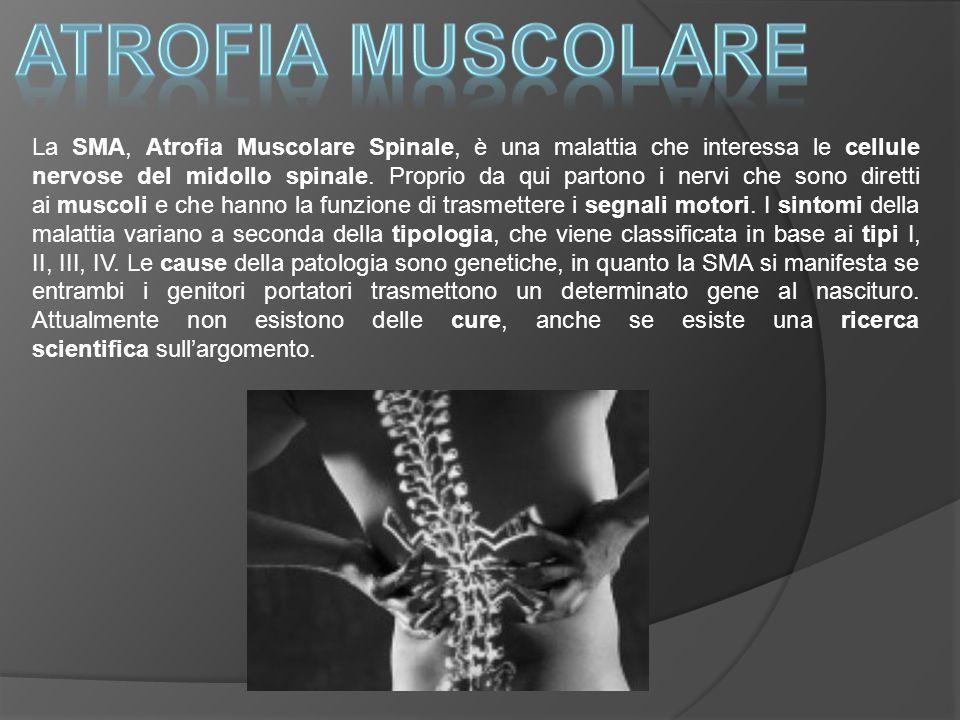 Atrofia muscolare