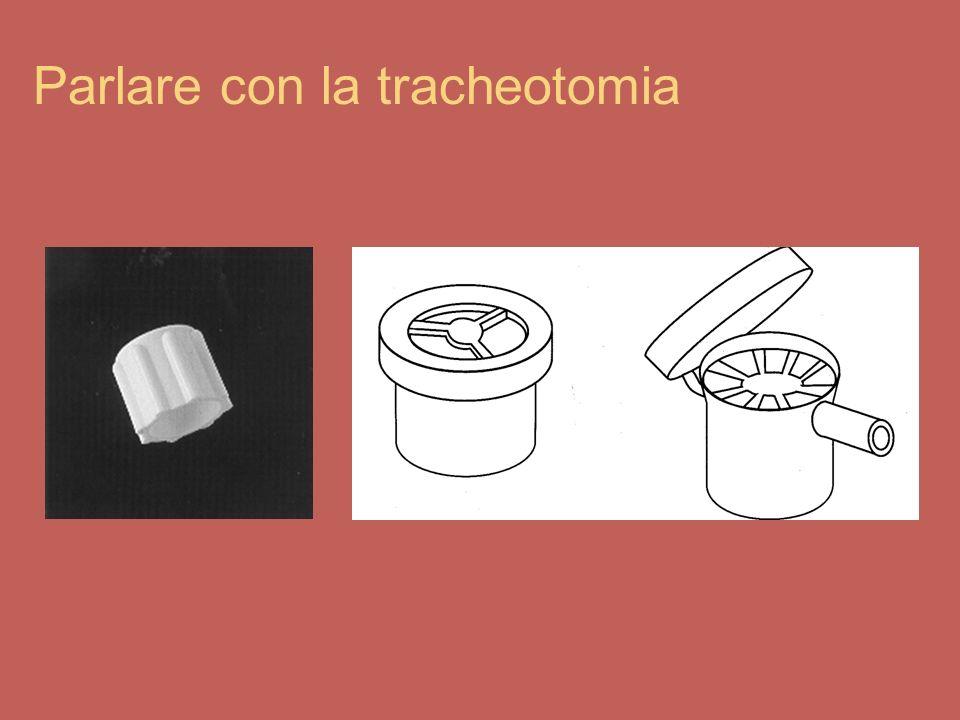 Parlare con la tracheotomia