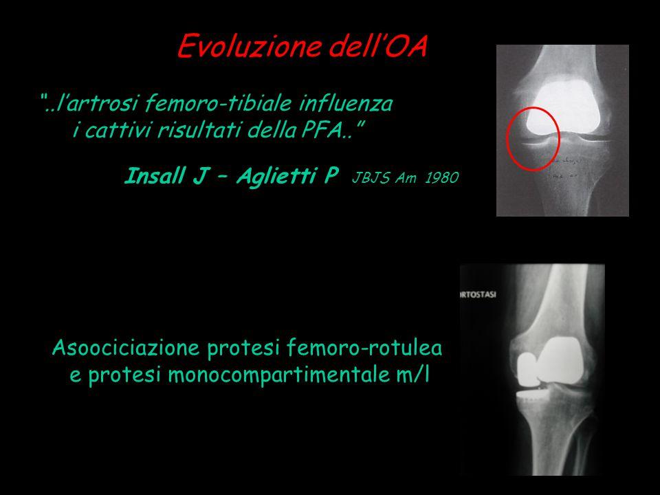 Evoluzione dell'OA ..l'artrosi femoro-tibiale influenza