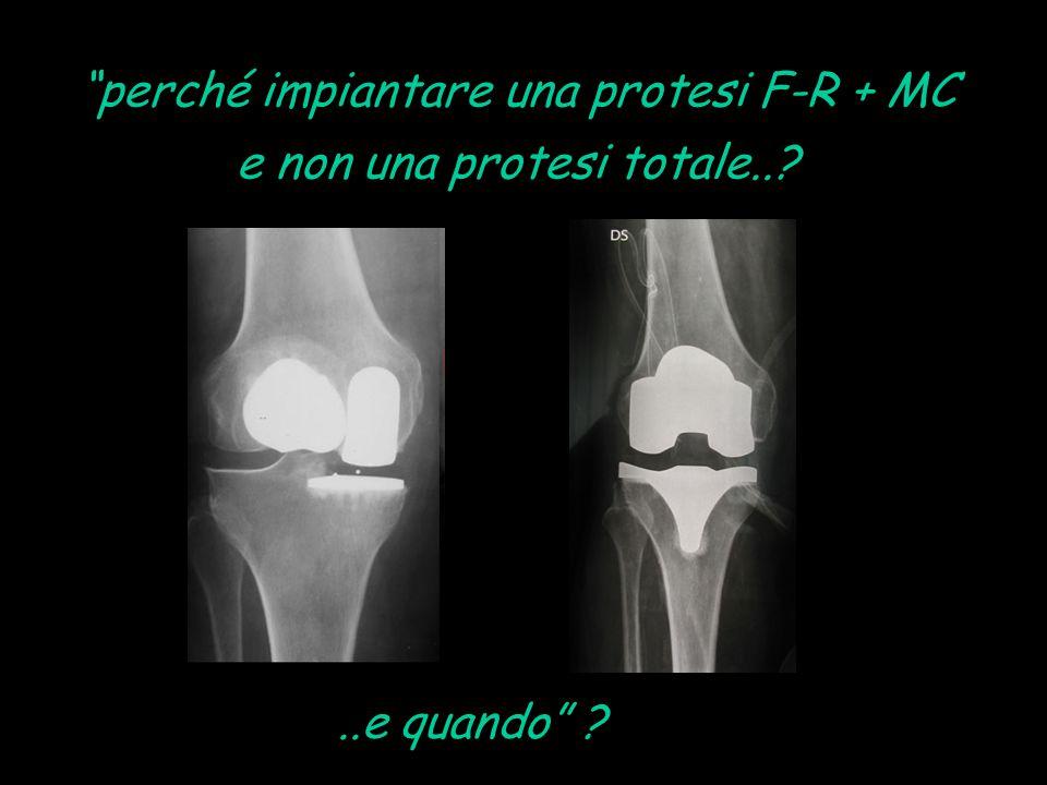 perché impiantare una protesi F-R + MC e non una protesi totale..