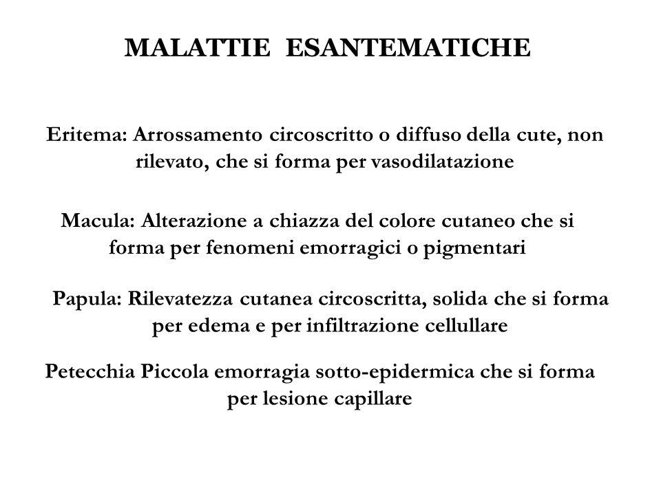 MALATTIE ESANTEMATICHE