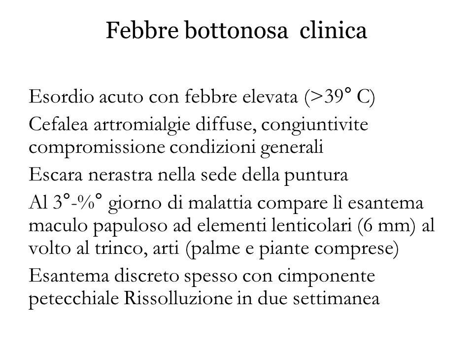 Febbre bottonosa clinica