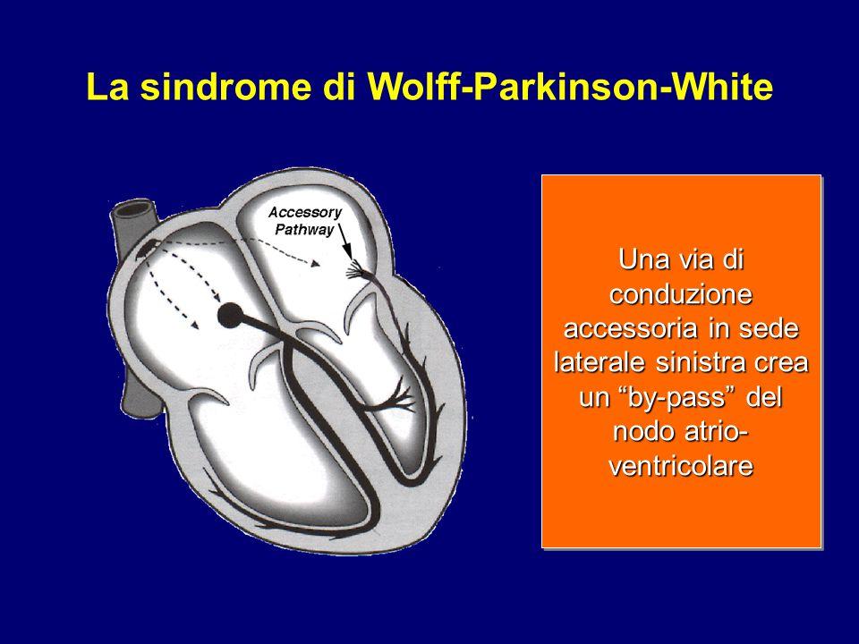 La sindrome di Wolff-Parkinson-White