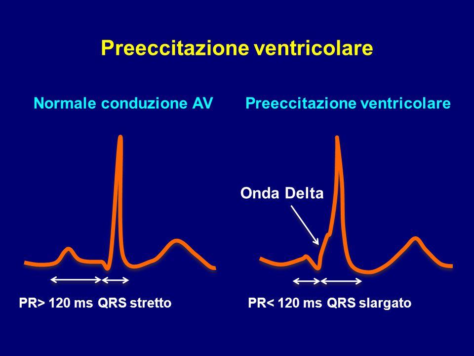 Preeccitazione ventricolare Preeccitazione ventricolare