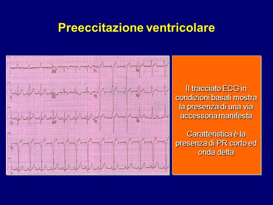 Preeccitazione ventricolare