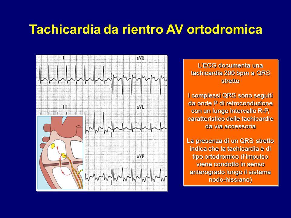 Tachicardia da rientro AV ortodromica
