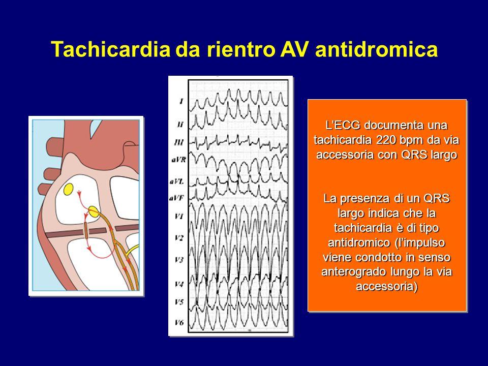 Tachicardia da rientro AV antidromica