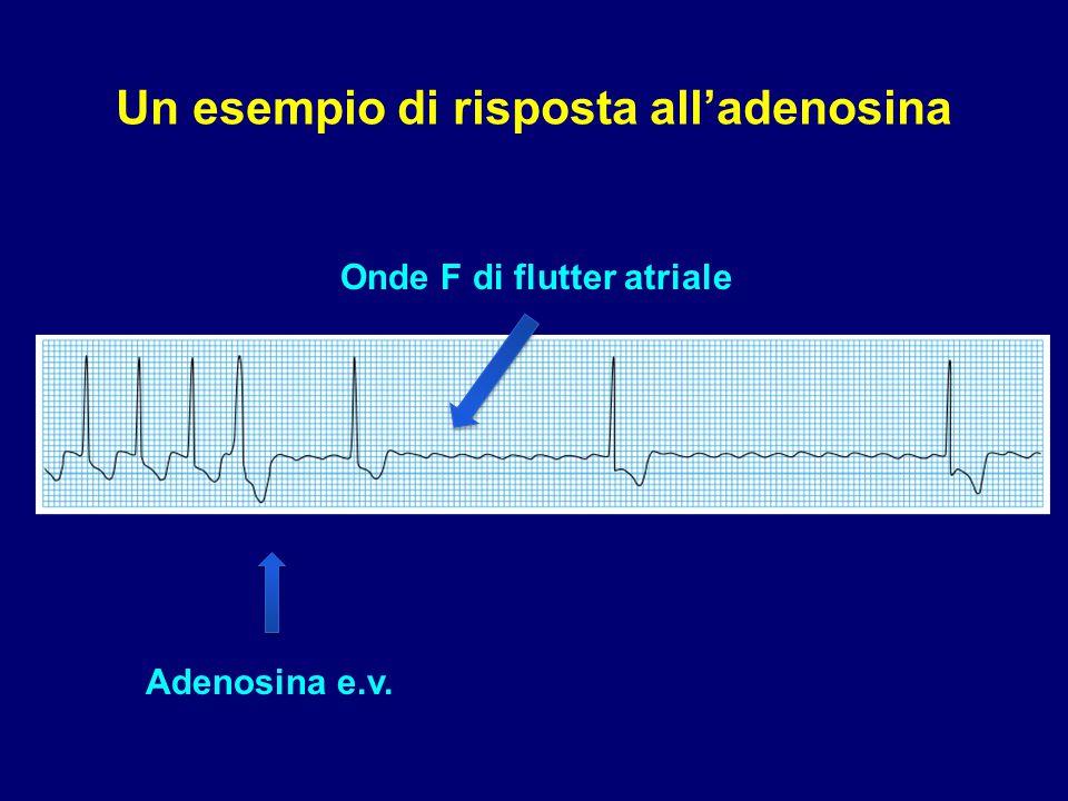 Un esempio di risposta all'adenosina
