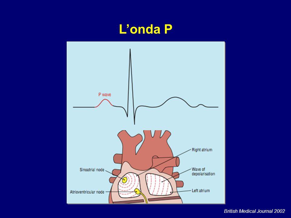 L'onda P L'onda P è l'espressione elettrocardiografica della depolarizzazione degli atri. British Medical Journal 2002.