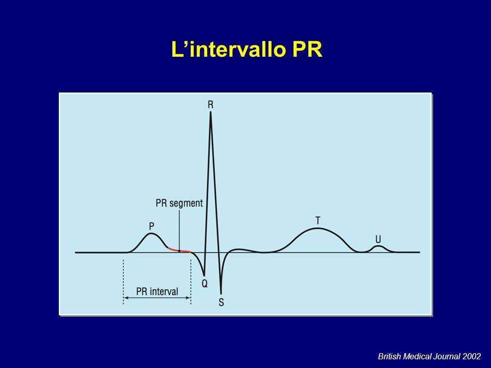 L'intervallo PR