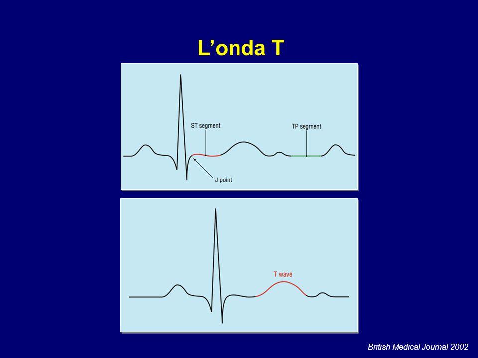 L'onda T Rappresenta la ripolarizzazione ventricolare.