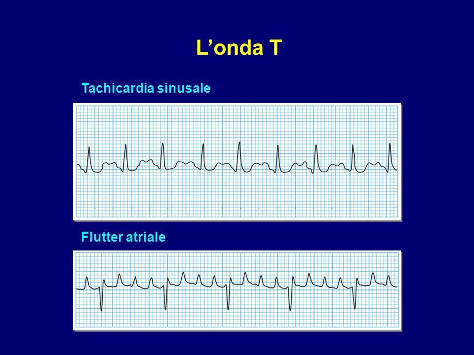 L'onda T Tachicardia sinusale Flutter atriale