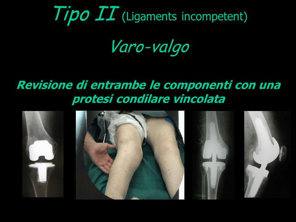 Tipo II (Ligaments incompetent)