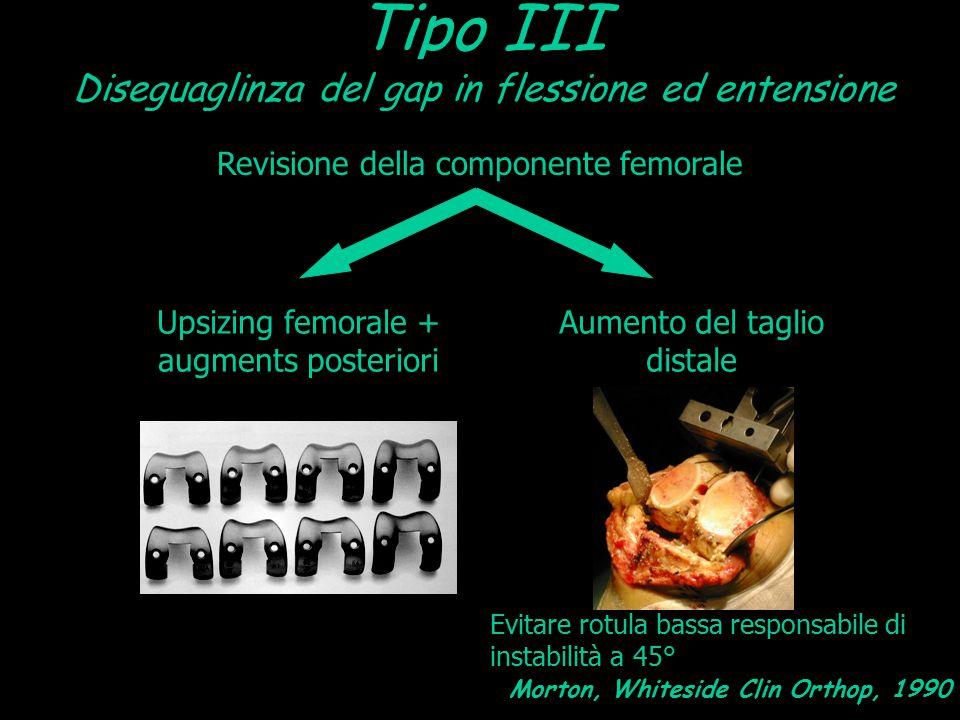 Tipo III Diseguaglinza del gap in flessione ed entensione