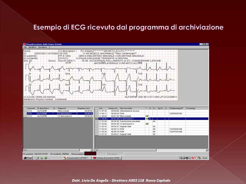Esempio di ECG ricevuto dal programma di archiviazione