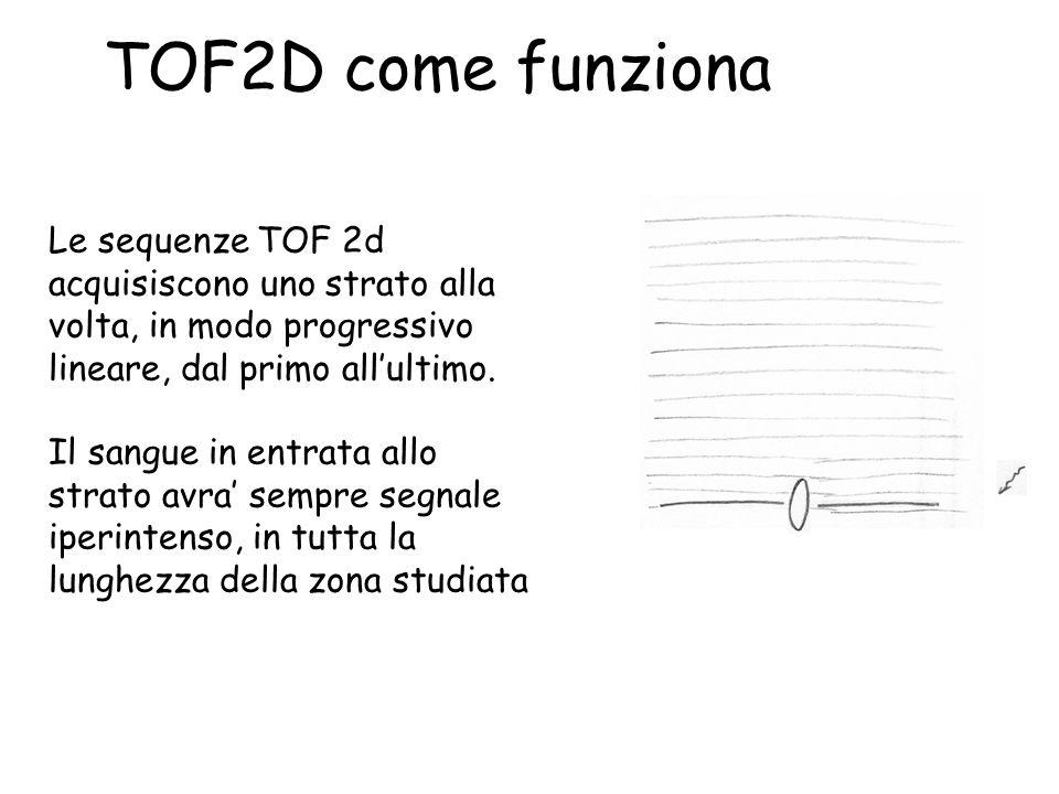 TOF2D come funziona Le sequenze TOF 2d acquisiscono uno strato alla volta, in modo progressivo lineare, dal primo all'ultimo.