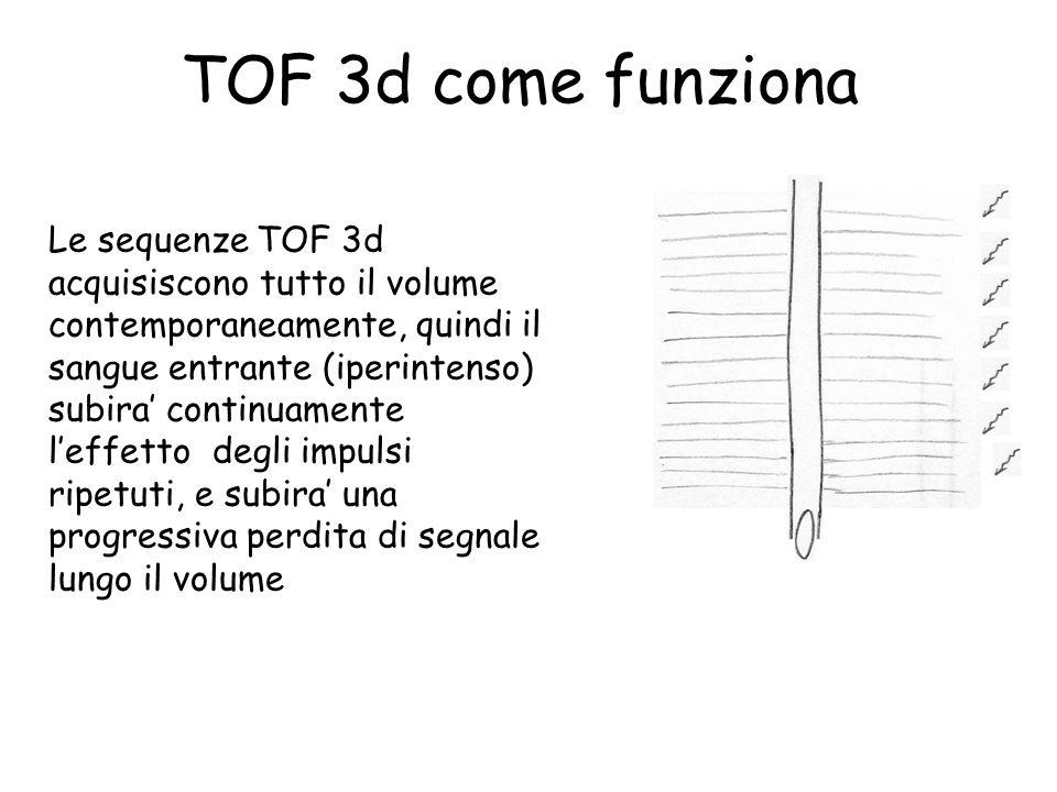 TOF 3d come funziona