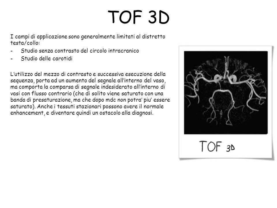 TOF 3D I campi di applicazione sono generalmente limitati al distretto testa/collo: Studio senza contrasto del circolo intracranico.