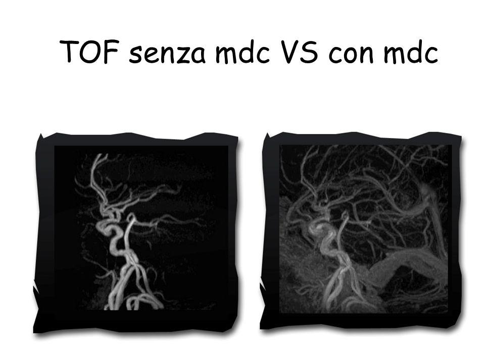 TOF senza mdc VS con mdc