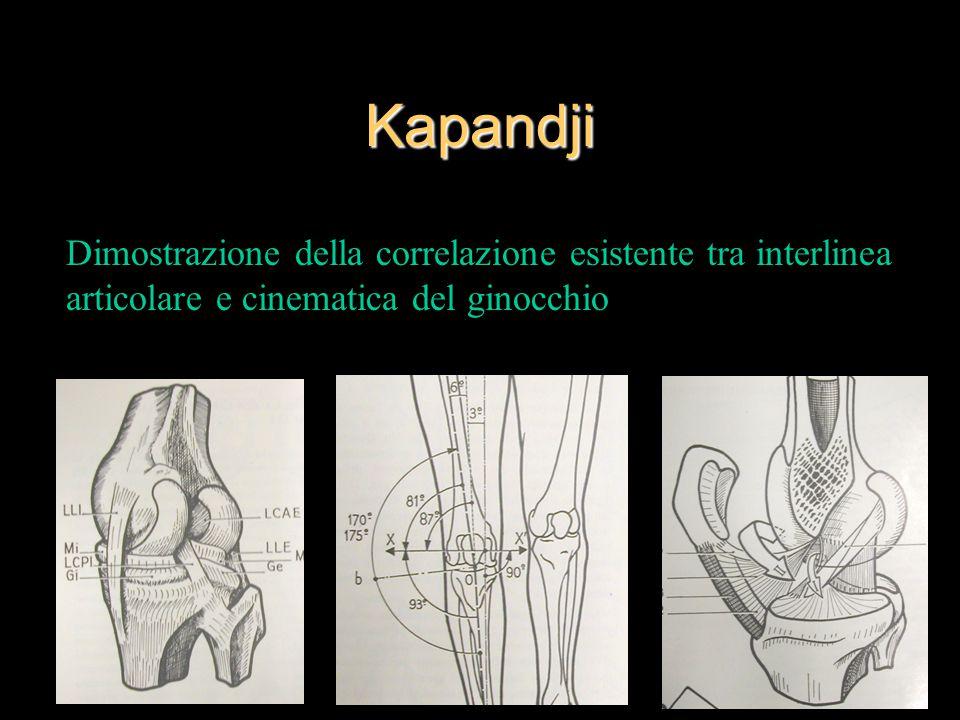 Kapandji Dimostrazione della correlazione esistente tra interlinea articolare e cinematica del ginocchio.
