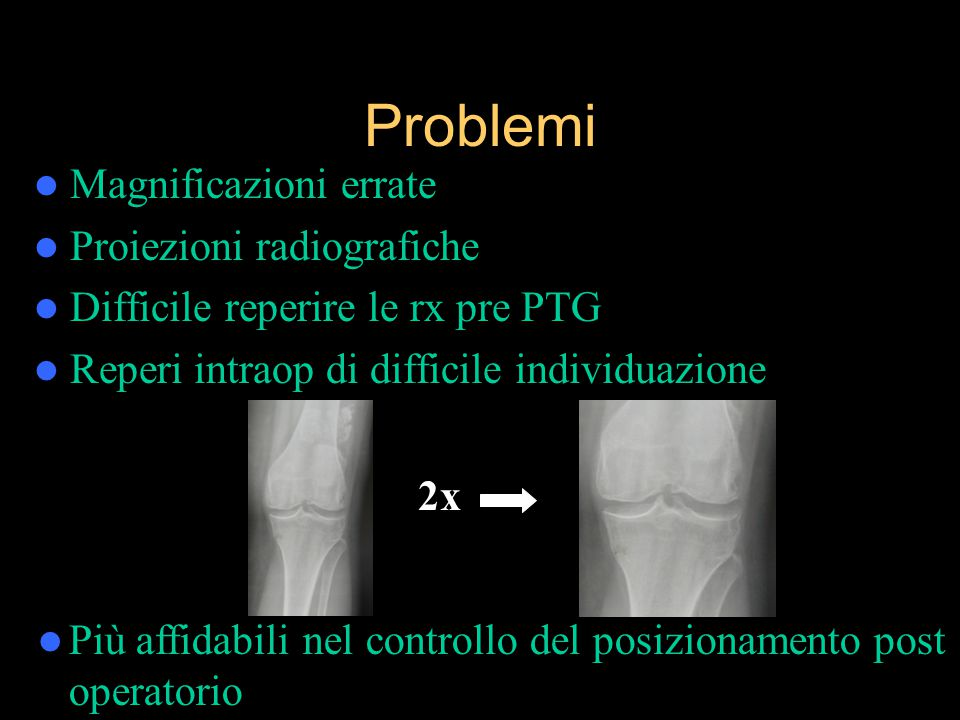 Problemi Magnificazioni errate Proiezioni radiografiche