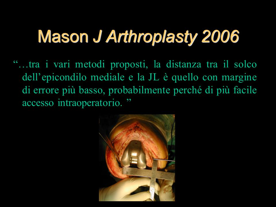 Mason J Arthroplasty 2006