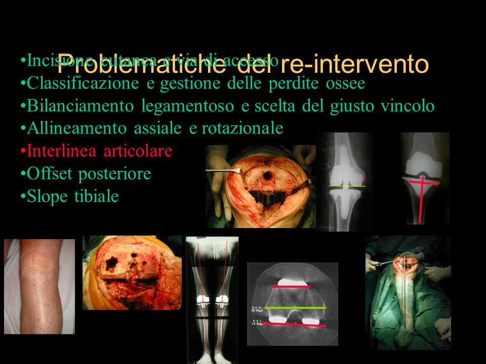 Problematiche del re-intervento