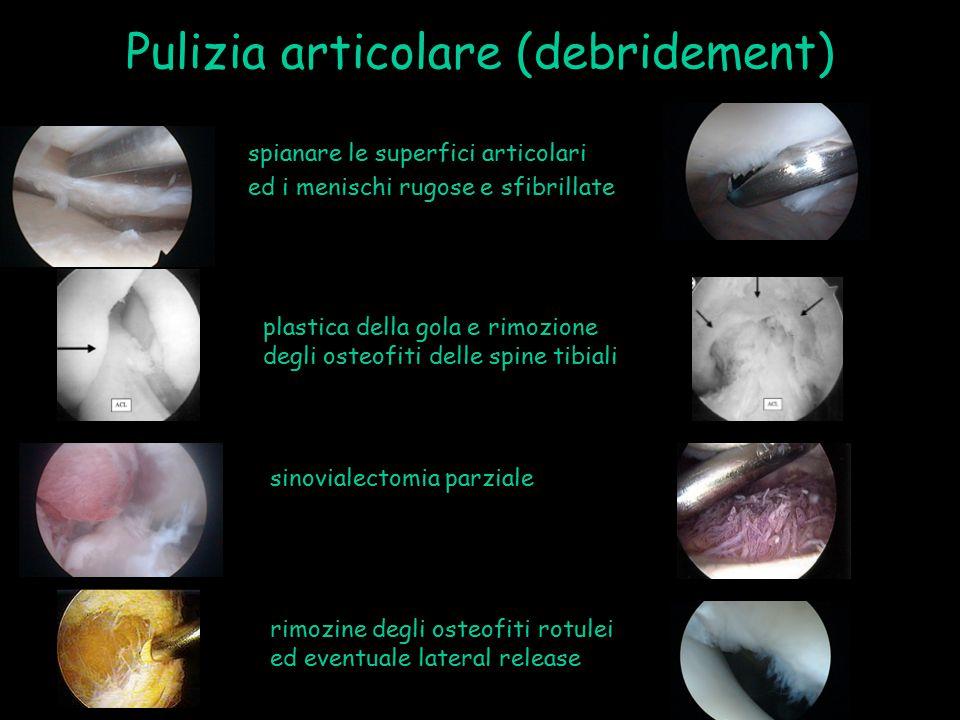 Pulizia articolare (debridement)