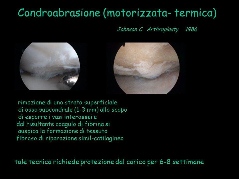 Condroabrasione (motorizzata- termica)