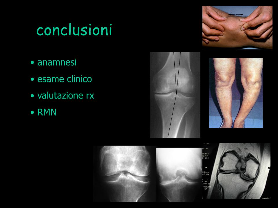 conclusioni anamnesi esame clinico valutazione rx RMN