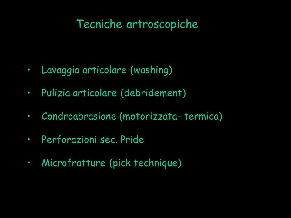 Tecniche artroscopiche