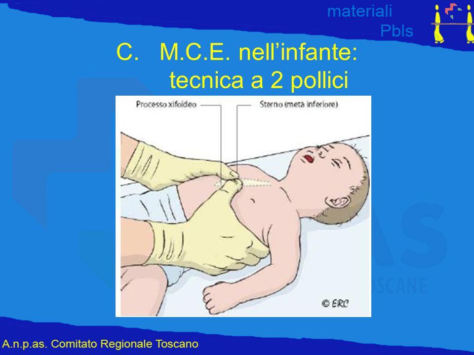 M.C.E. nell'infante: tecnica a 2 pollici
