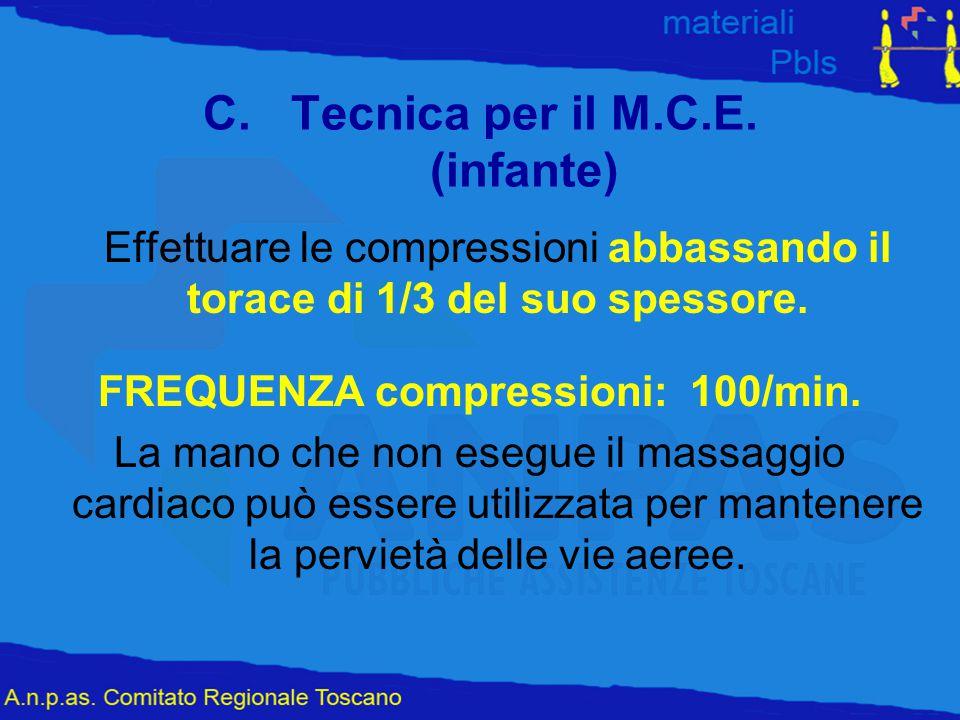 Tecnica per il M.C.E. (infante)