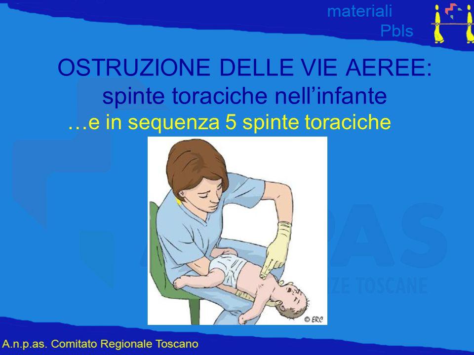 OSTRUZIONE DELLE VIE AEREE: spinte toraciche nell'infante