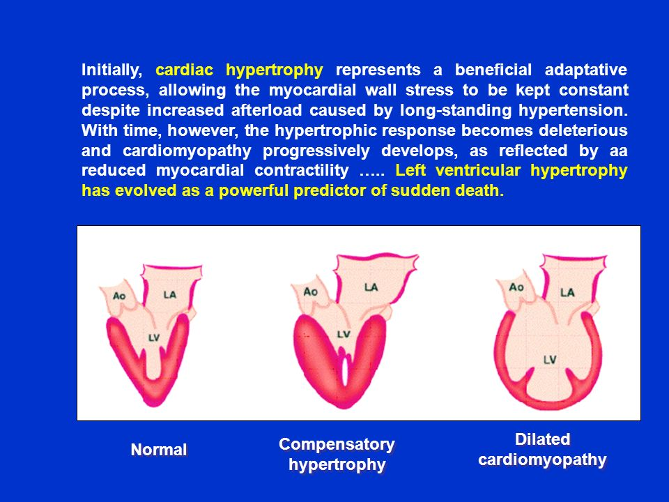Compensatory hypertrophy Dilated cardiomyopathy
