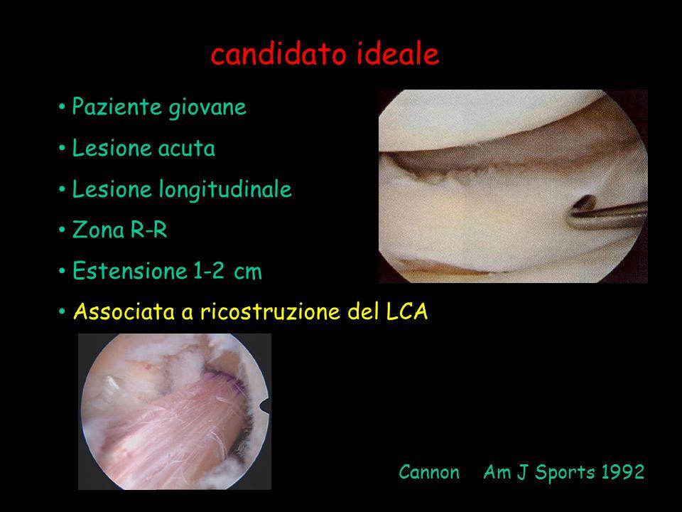 candidato ideale Paziente giovane Lesione acuta Lesione longitudinale