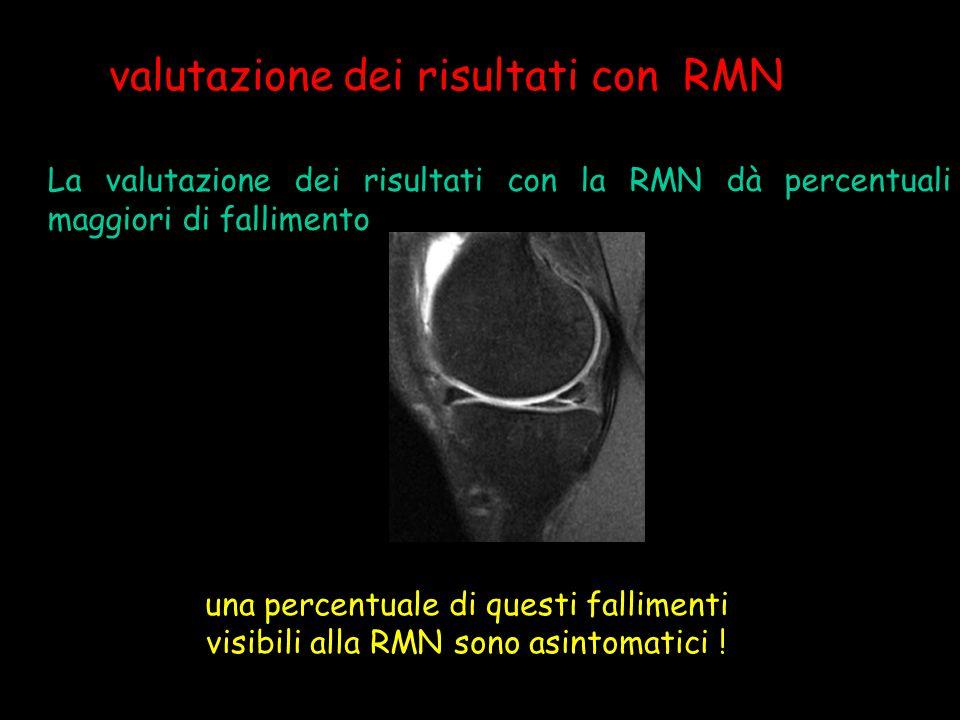 valutazione dei risultati con RMN