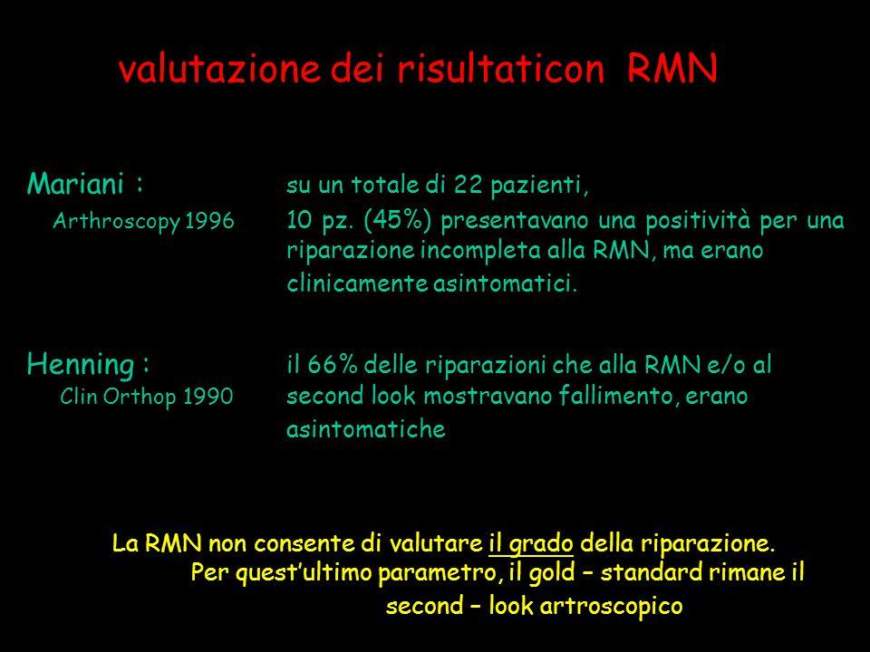 valutazione dei risultaticon RMN