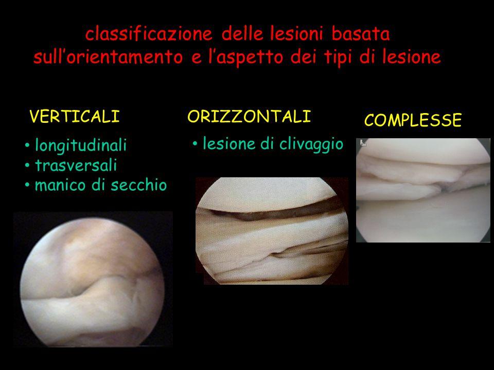 classificazione delle lesioni basata sull'orientamento e l'aspetto dei tipi di lesione