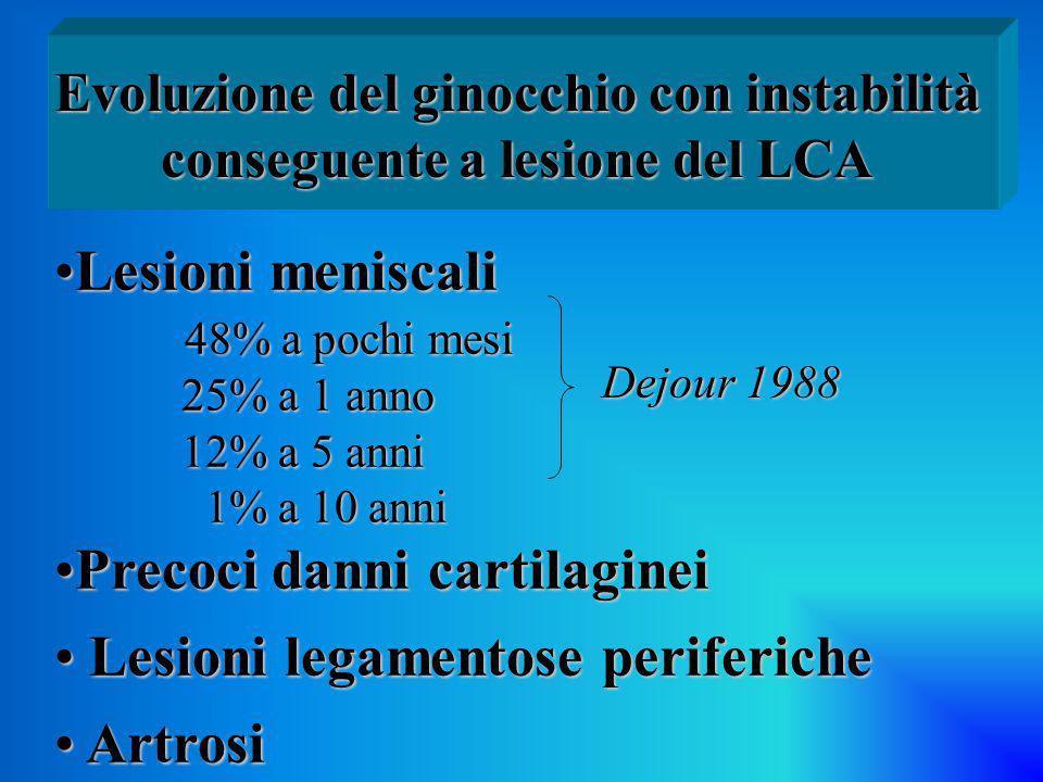 Evoluzione del ginocchio con instabilità conseguente a lesione del LCA