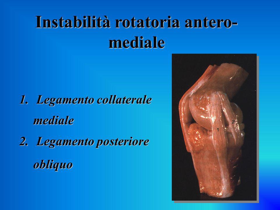 Instabilità rotatoria antero-mediale