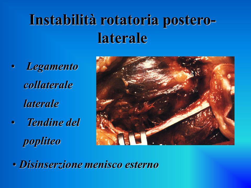 Instabilità rotatoria postero-laterale