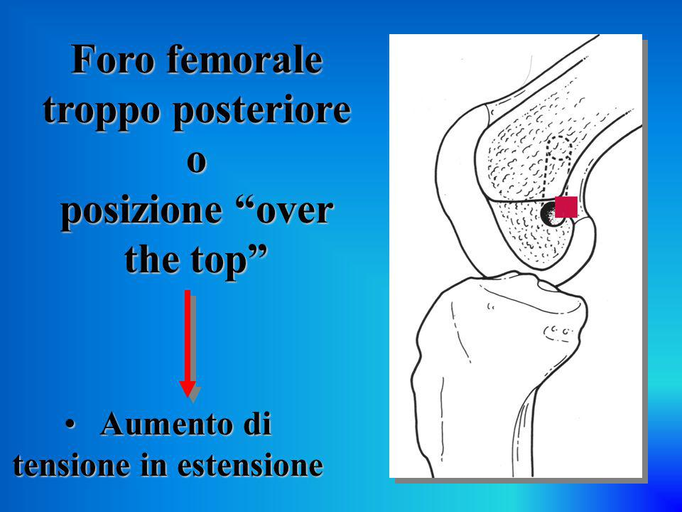 Foro femorale troppo posteriore o posizione over the top