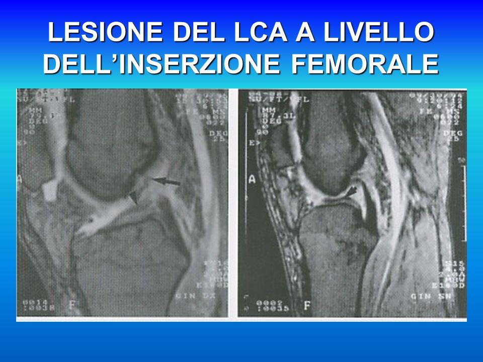 LESIONE DEL LCA A LIVELLO DELL'INSERZIONE FEMORALE