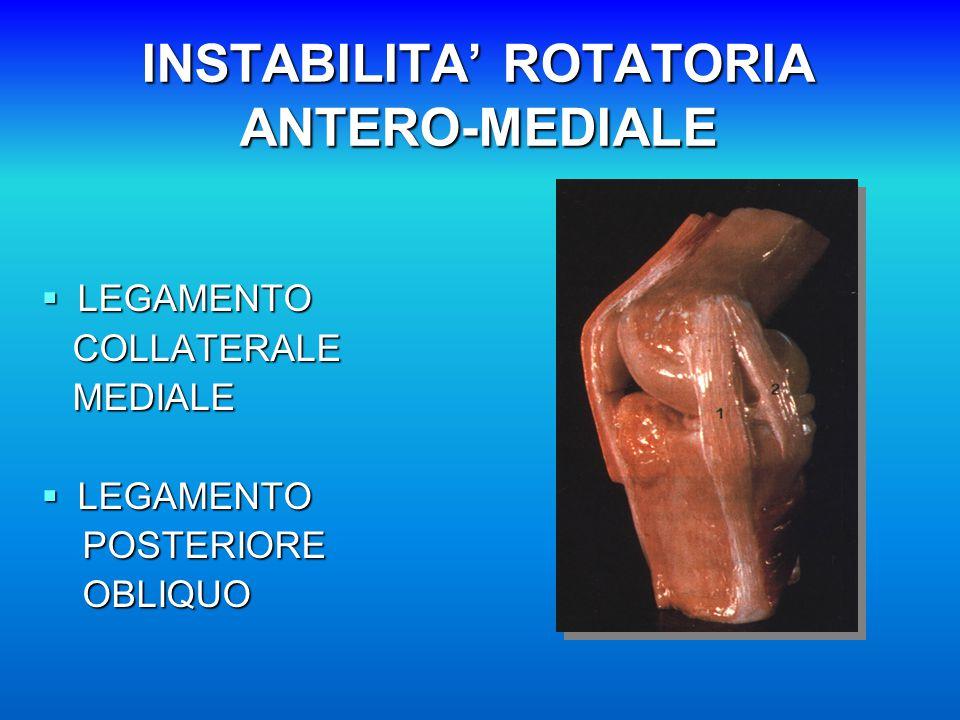 INSTABILITA' ROTATORIA ANTERO-MEDIALE