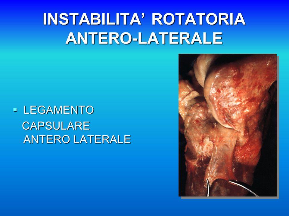 INSTABILITA' ROTATORIA ANTERO-LATERALE