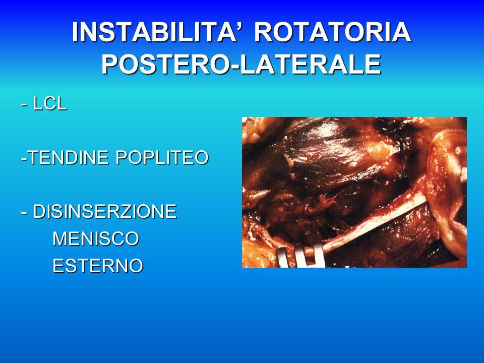 INSTABILITA' ROTATORIA POSTERO-LATERALE