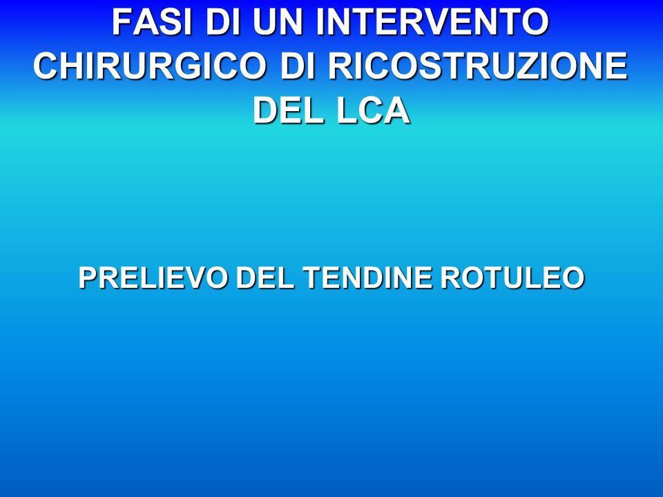 FASI DI UN INTERVENTO CHIRURGICO DI RICOSTRUZIONE DEL LCA