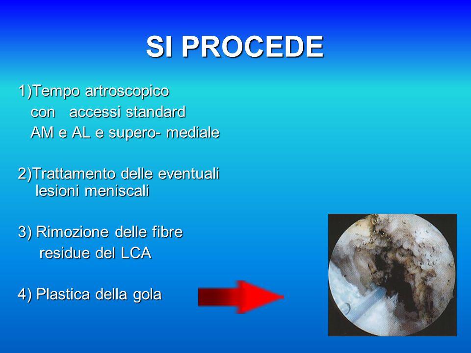 SI PROCEDE 1)Tempo artroscopico con accessi standard